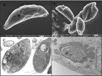 Imágenes parásitos de Toxoplasma