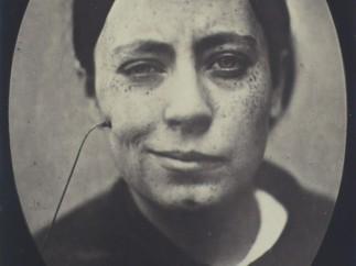 Dr. Gillaume Duchenne - Rire faux (False laugh) from 'Mécanisme de la physionomie humaine', 1862
