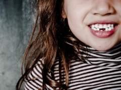 ¿Por qué se nos caen los dientes de leche?