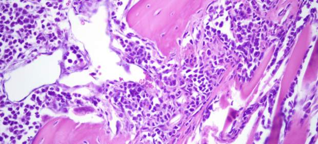 Lesión Litica del modelo de Mieloma Múltiple/ CSIC