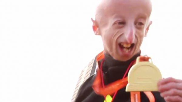 Un enfermo de progeria finaliza una maratón