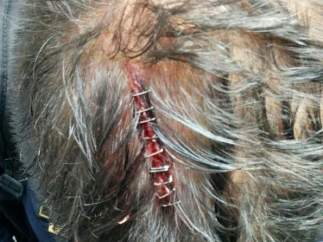 Tres policías fueron atendidos por brechas en la cabeza en el CIE de Murcia