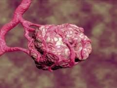 Sanidad autoriza el primer medicamento biológico contra el cáncer de cérvix