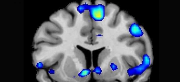 Imagen del estudio publicado en la revista especializada Social Neuroscience.