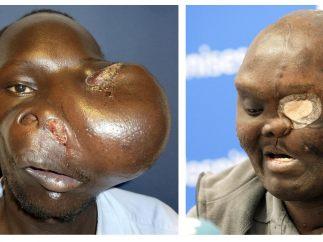 Operación de un tumor gigante en la cara