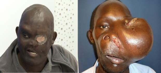 Cavadas extirpa un tumor gegant semimaligne en la base del crani a un home de Kènia