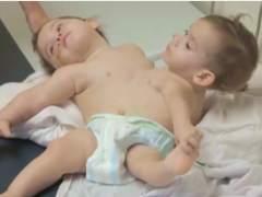 Erika y Eva: las siamesas que aguardan una delicada operación