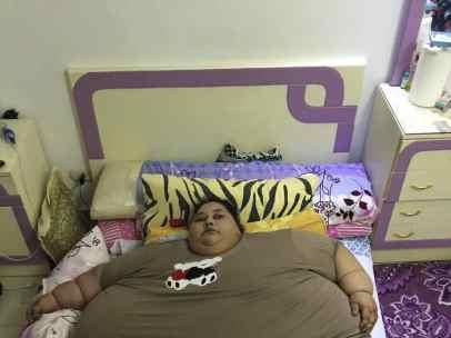 La mujer más obesa del mundo