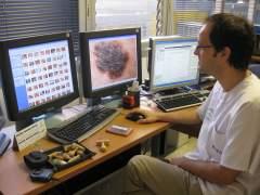 Crean el primer análisis de sangre que detecta melanomas en sus primeras fases