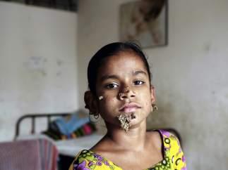 Shahana Khatum, la niña aquejada de la enfermedad del 'hombre árbol'