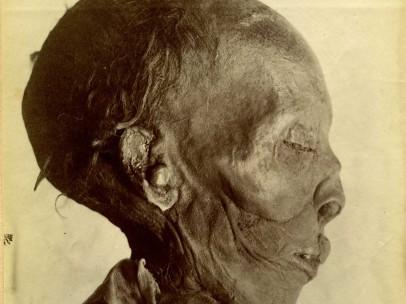 Jan Herman Insinger (1854-1918) - Gemummificeerd lichaam van de farao Thoetmosis II (18e dynastie), 1886