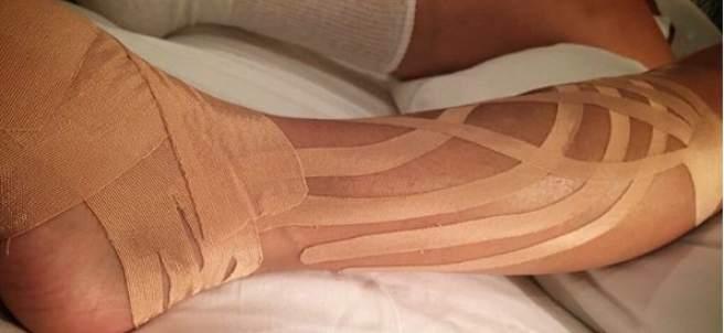 Así está la pierna de Paulina Rubio tras su caída en pleno concierto