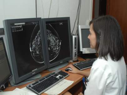 Una especialista revisa los resultados de una mamografía