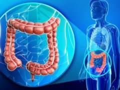 Vinculan un tipo de colon irritable al agotamiento del sistema inmunológico
