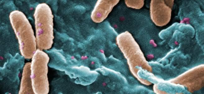 Bacterias Pseudomonas