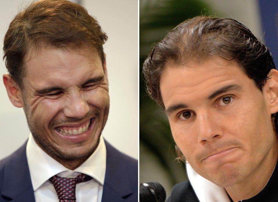 Rafa Nadal. El tenista mallorquín (30 años) fue intervenido en noviembre del año pasado durante más de 10 horas en un centro de Madrid para frenar su alopecia.