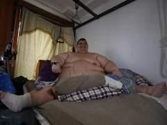 El hombre más obeso del mundo será operado tras perder 175 kilos