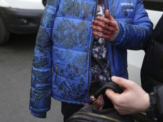 Uno de los heridos en la explosión