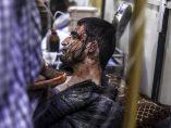 Herido en un bombardeo en Siria