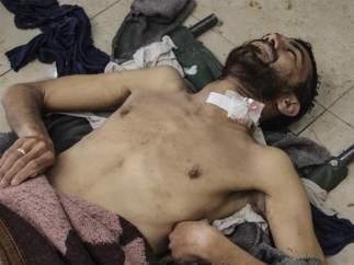 Supuesto ataque químico en Siria