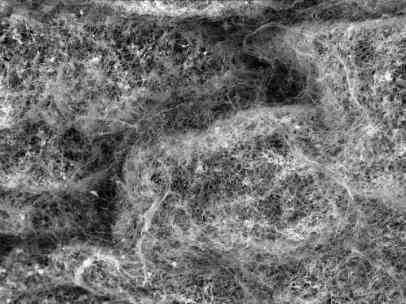 Mucinas, las moléculas que forman el gen del moco