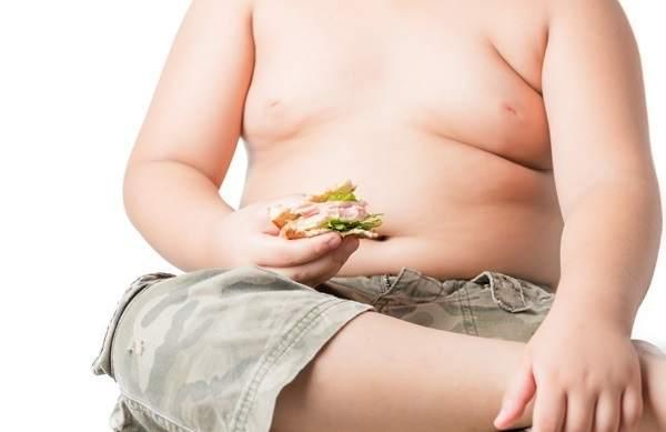 Niño con sobrepeso.