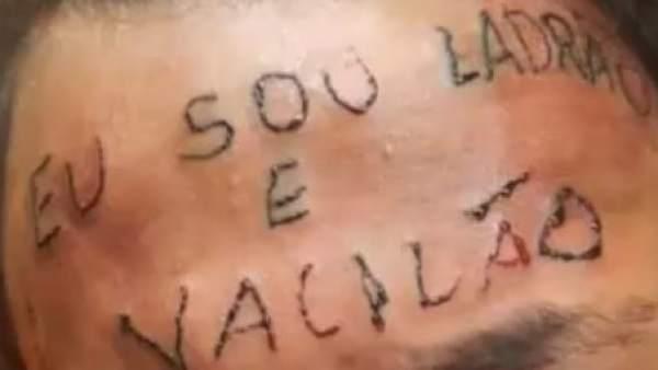 Recaudan 4500 Euros Para Borrar Un Tatuaje Hecho A Un Chico