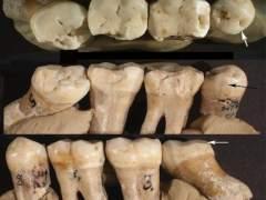 Los Neanderthales también iban al 'dentista'