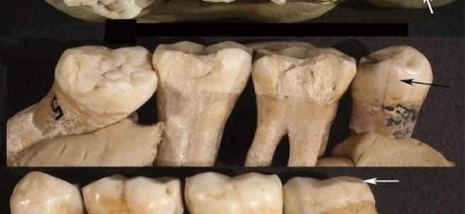 Dientes de neanderthal