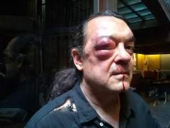 Investigan la brutal agresión a Fernando Barredo (Podemos)