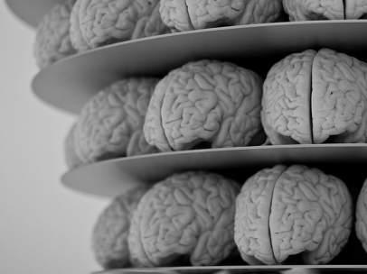 Alzhéimer.