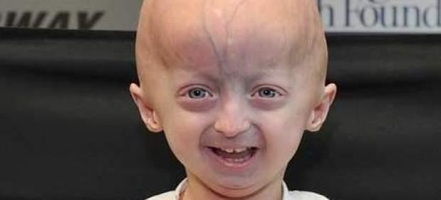 ¿Qué es la progeria, la enfermedad rara que produce el envejecimiento rápido de los niños?