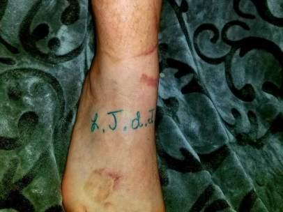Se tatúa las cicatrices de su hijo