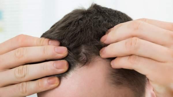 Hallada una nueva forma de hacer crecer el pelo y tratar la calvicie
