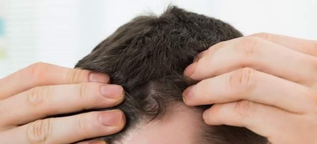 ¿El fin de la calvicie? Científicos alemanes dan con el producto que podría acabar con ella