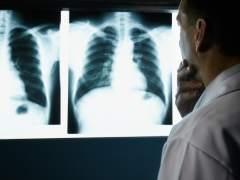 Cáncer de pulmón y tos: ¿cuál es la conexión?
