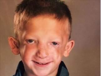 Jackson, un niño que padece el síndrome de Treacher Collins