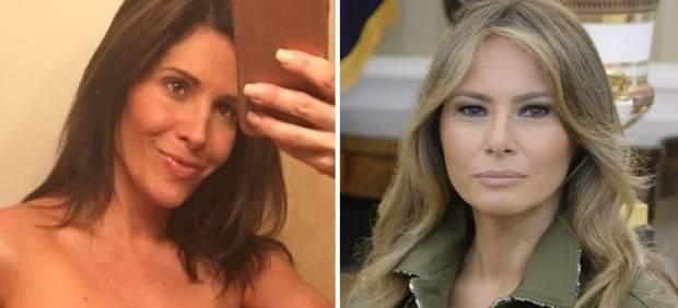 Nueve operaciones para parecerse a Melania Trump