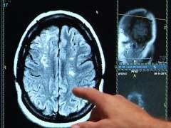 La rehabilitación del ictus podría monitorizarse con un dispositivo en la garganta
