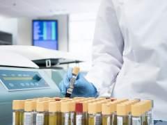 Crean en Japón un método de detección de cáncer en sangre con precisión del 90%