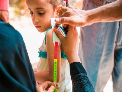 Niño desnutrido en Yemen