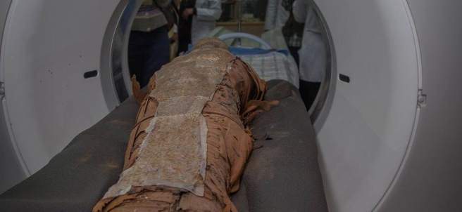 TAC a momia