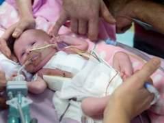 Una bebé que nació con el corazón fuera sobrevive a tres cirugías