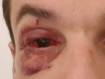Imagen del guardia urbano herido en el ojo por un grupo de manteros en Barcelona.