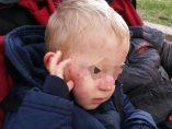 Daños sufridos por un niño en una guardería