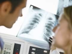 Un 10% de los adultos jóvenes no ha desarrollado bien el pulmón