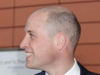 Guillermo de Inglaterra se rapa y acepta su problema de alopecia