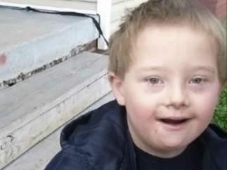 Un niño con síndrome de Down