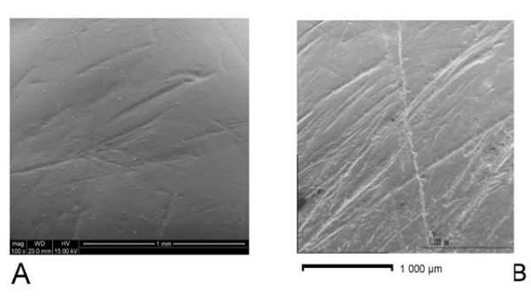 Marcas de dientes de un 'homo antecessor' y un preneandertal