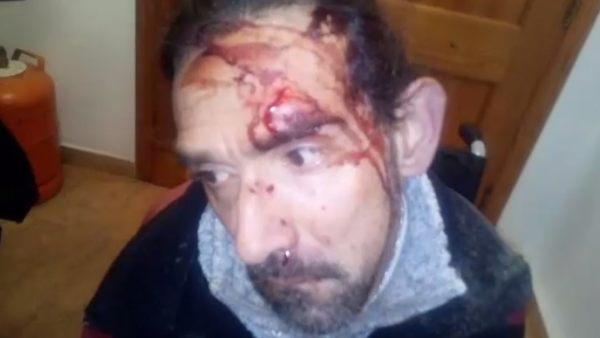 Agreden a un paralítico cerebral en Valencia